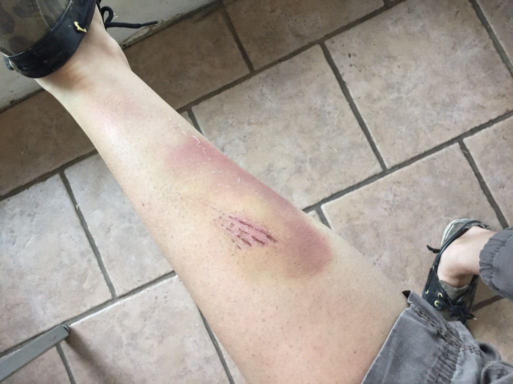 My bruise a few days after an altercation with Coco during one of our afternoon walking dates.